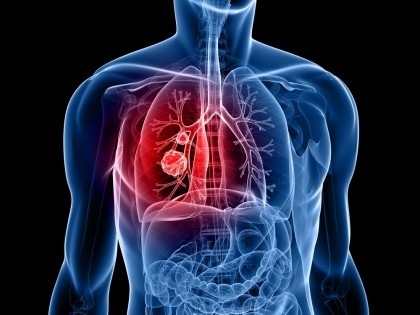 Respirer dans un téléphone pour détecter une maladie